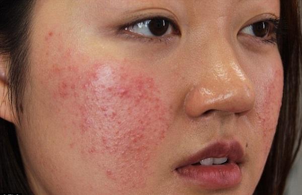 Điều trị dị ứng da mặt
